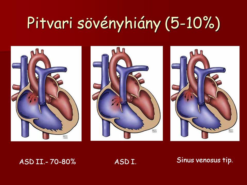 Pitvari sövényhiány (5-10%) ASD II.- 70-80%ASD I. Sinus venosus tip.