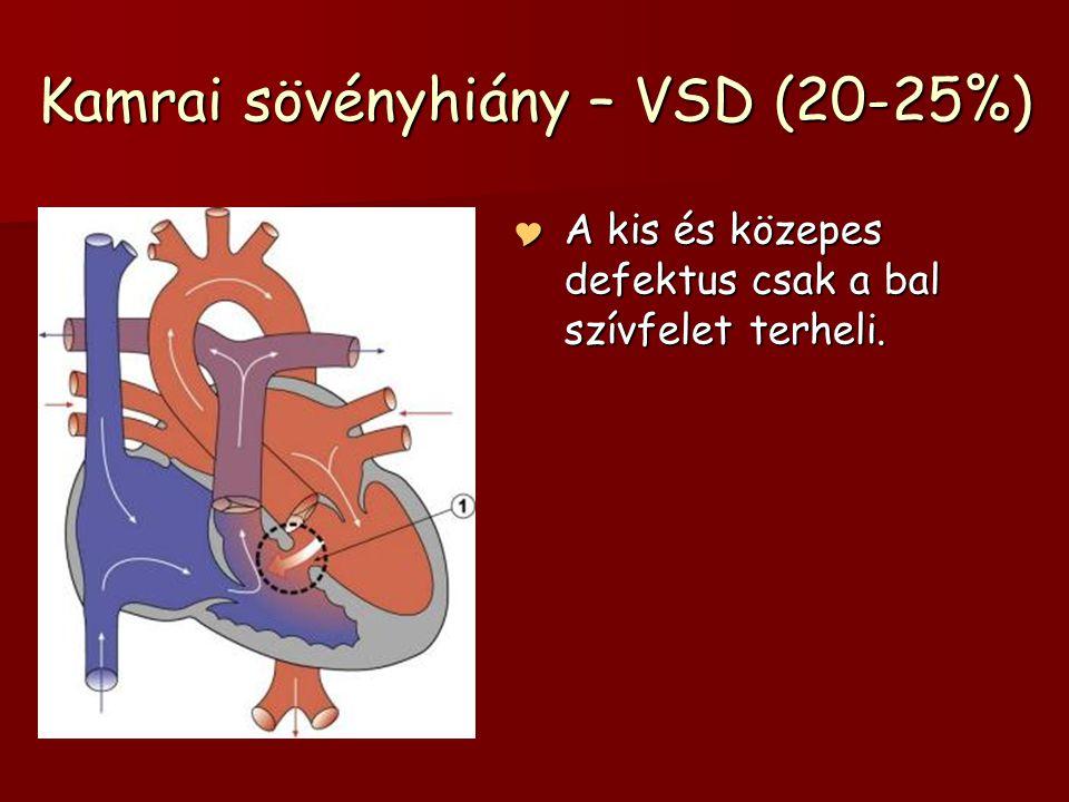 Kamrai sövényhiány – VSD (20-25%)  A kis és közepes defektus csak a bal szívfelet terheli.