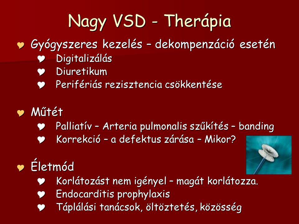 Nagy VSD - Therápia  Gyógyszeres kezelés – dekompenzáció esetén  Digitalizálás  Diuretikum  Perifériás rezisztencia csökkentése  Műtét  Palliatív – Arteria pulmonalis szűkítés – banding  Korrekció – a defektus zárása – Mikor.