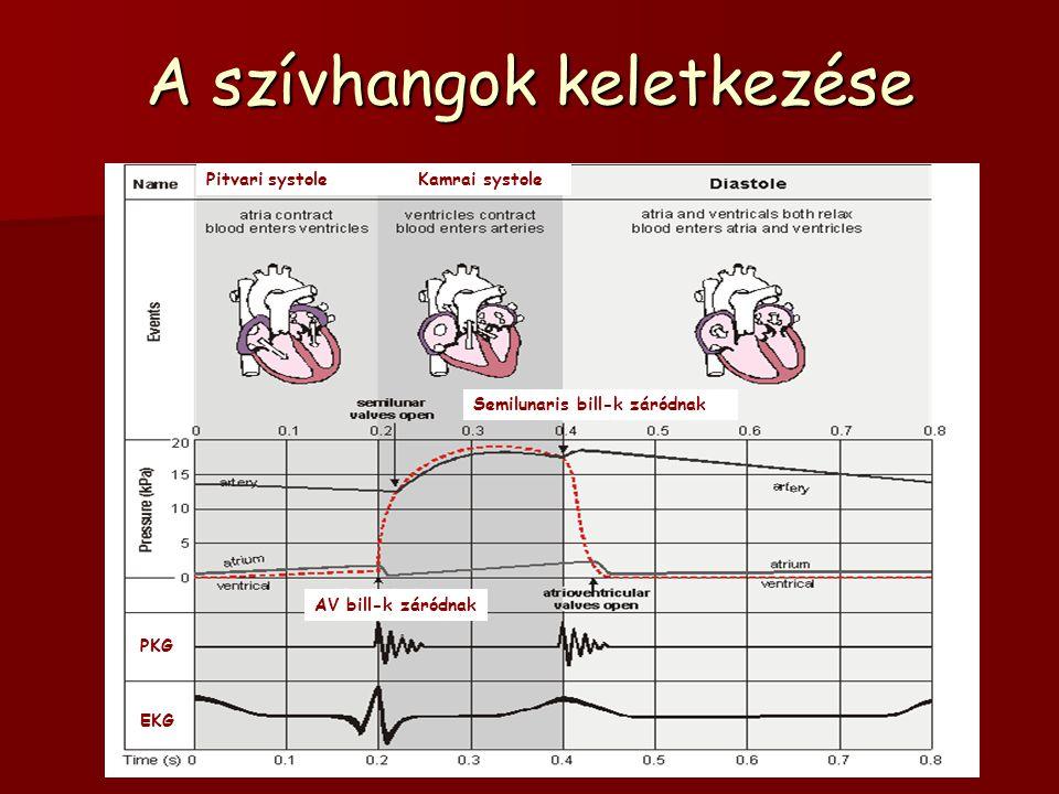 A szívhangok keletkezése AV bill-k záródnak Semilunaris bill-k záródnak EKG PKG Pitvari systoleKamrai systole