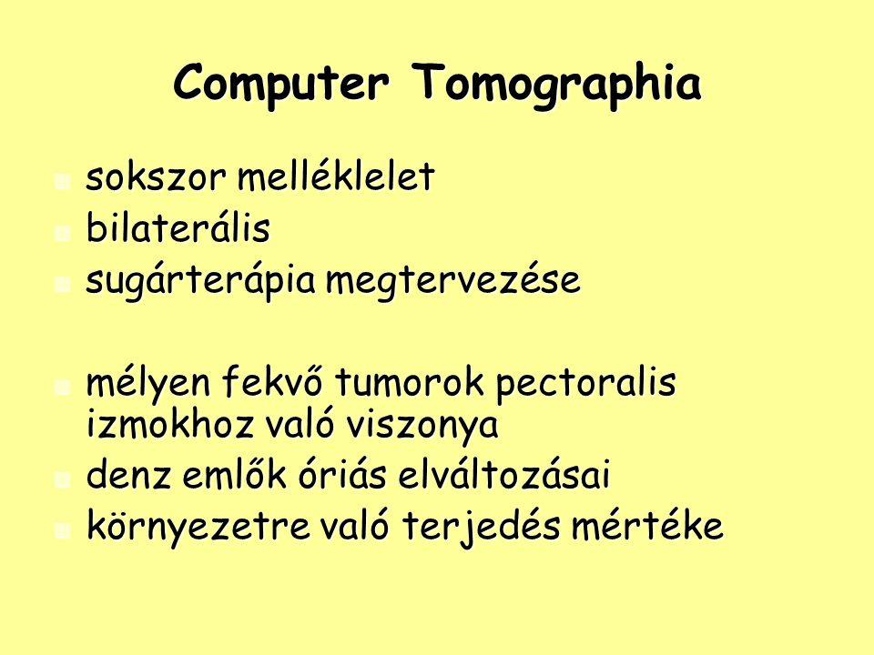 Computer Tomographia sokszor melléklelet sokszor melléklelet bilaterális bilaterális sugárterápia megtervezése sugárterápia megtervezése mélyen fekvő tumorok pectoralis izmokhoz való viszonya mélyen fekvő tumorok pectoralis izmokhoz való viszonya denz emlők óriás elváltozásai denz emlők óriás elváltozásai környezetre való terjedés mértéke környezetre való terjedés mértéke