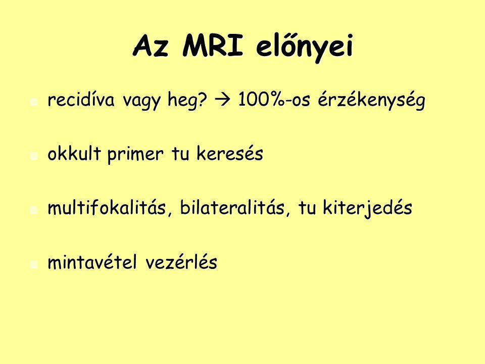 Az MRI előnyei recidíva vagy heg. 100%-os érzékenység recidíva vagy heg.