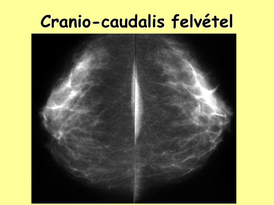 Ultrahang hátrányai aspecifikus tünetek aspecifikus tünetek heg és tumor azonos képet ad heg és tumor azonos képet ad microcalcificatio nem ábrázolható microcalcificatio nem ábrázolható korlátozott felbontás korlátozott felbontás eszköz- és vizsgálófüggő, nehezen reprodukálható eszköz- és vizsgálófüggő, nehezen reprodukálható