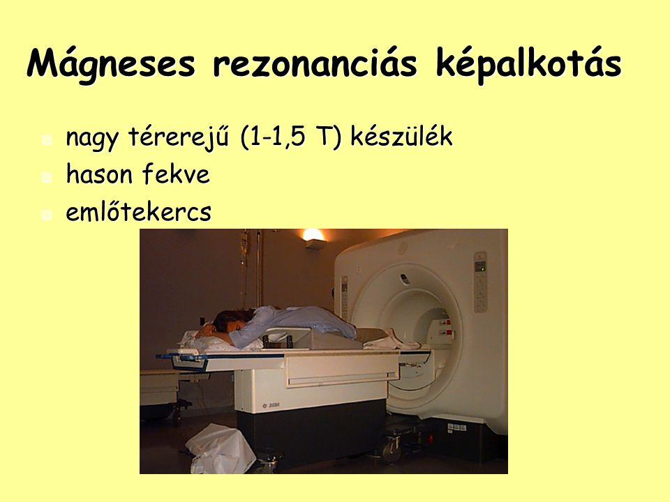 Mágneses rezonanciás képalkotás nagy térerejű (1-1,5 T) készülék nagy térerejű (1-1,5 T) készülék hason fekve hason fekve emlőtekercs emlőtekercs