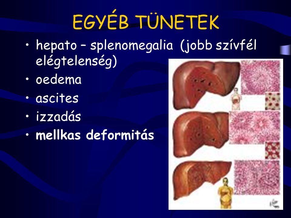EGYÉB TÜNETEK hepato – splenomegalia (jobb szívfél elégtelenség) oedema ascites izzadás mellkas deformitás