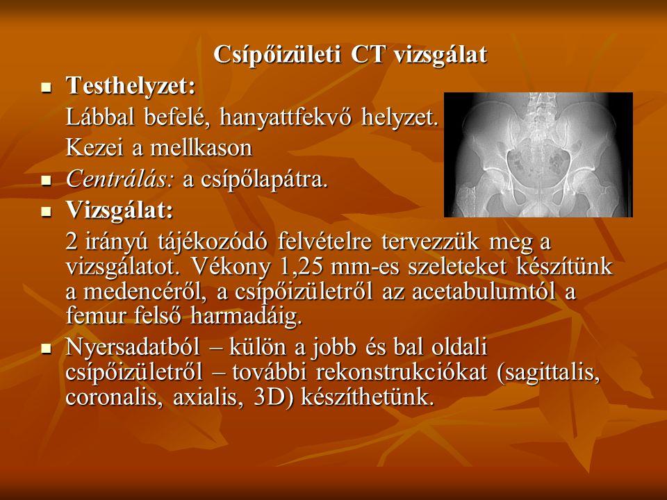 Csípőizületi CT vizsgálat Testhelyzet: Testhelyzet: Lábbal befelé, hanyattfekvő helyzet. Kezei a mellkason Centrálás: a csípőlapátra. Centrálás: a csí