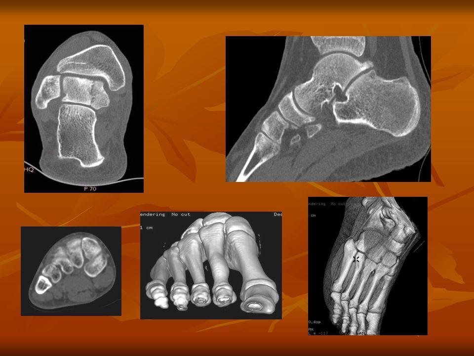 Váll, felkar, könyök, alkar, csukló, kéz CT vizsgálat Testhelyzet: Testhelyzet: Fejjel befelé, általában hason fekvő helyzet.