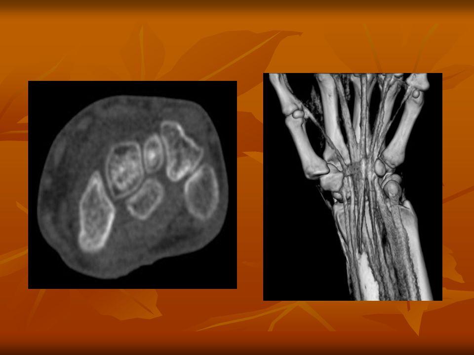 Felsővégtagi CT angiographiás vizsgálat Előkészítés: Előkészítés: Vizsgálat előtt 4 órával ne egyen.
