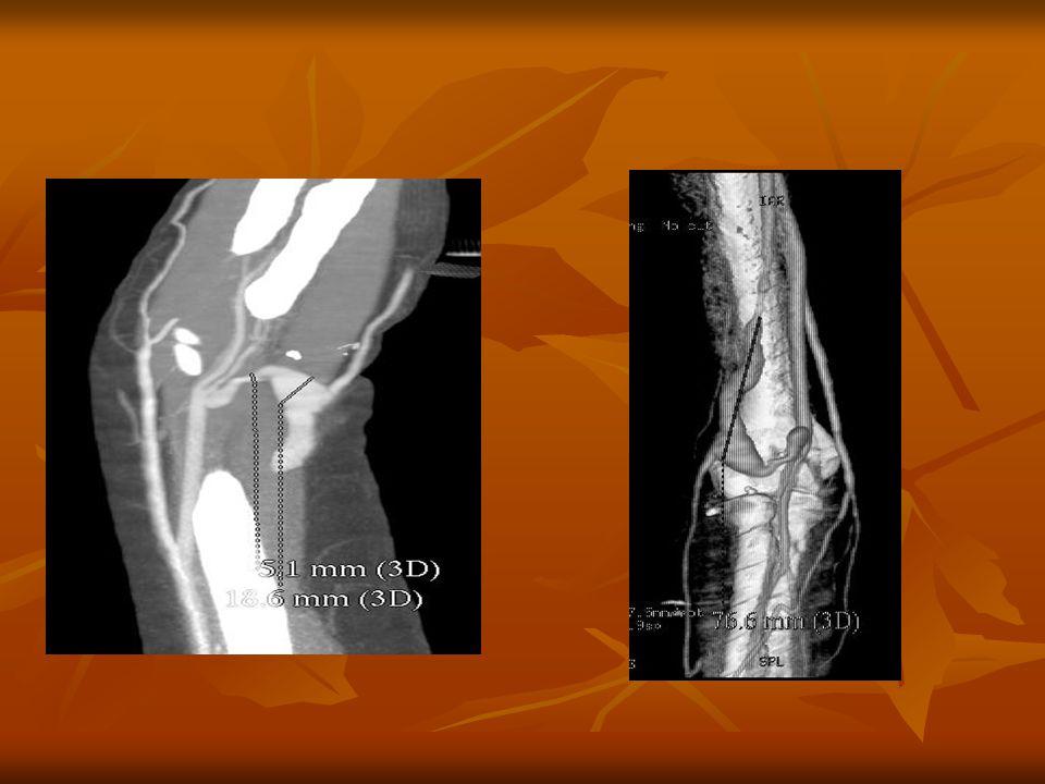 Alsóvégtagi CT angiographia vizsgálat Előkészítés: Előkészítés: Vizsgálat előtt 4 órával ne egyen.