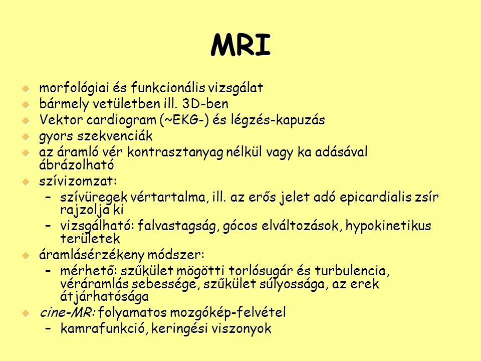 MRI  morfológiai és funkcionális vizsgálat  bármely vetületben ill. 3D-ben  Vektor cardiogram (~EKG-) és légzés-kapuzás  gyors szekvenciák  az ár