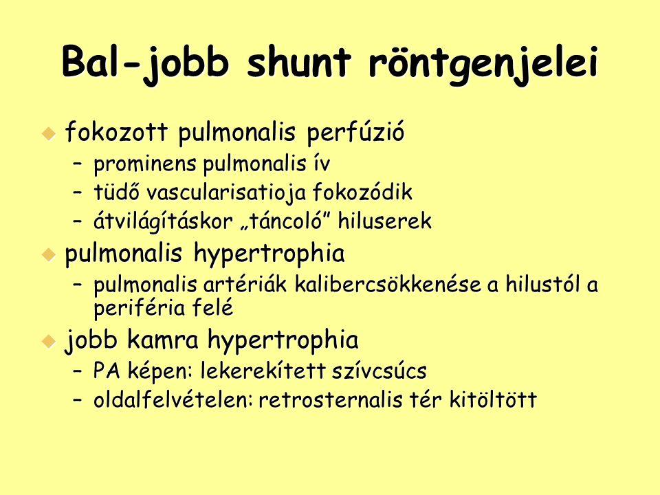 """Bal-jobb shunt röntgenjelei  fokozott pulmonalis perfúzió –prominens pulmonalis ív –tüdő vascularisatioja fokozódik –átvilágításkor """"táncoló hiluserek  pulmonalis hypertrophia –pulmonalis artériák kalibercsökkenése a hilustól a periféria felé  jobb kamra hypertrophia –PA képen: lekerekített szívcsúcs –oldalfelvételen: retrosternalis tér kitöltött"""