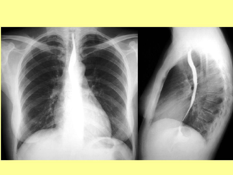 Fallot-tetralógia (TOF)  1.pulmonalis stenosis, 2.