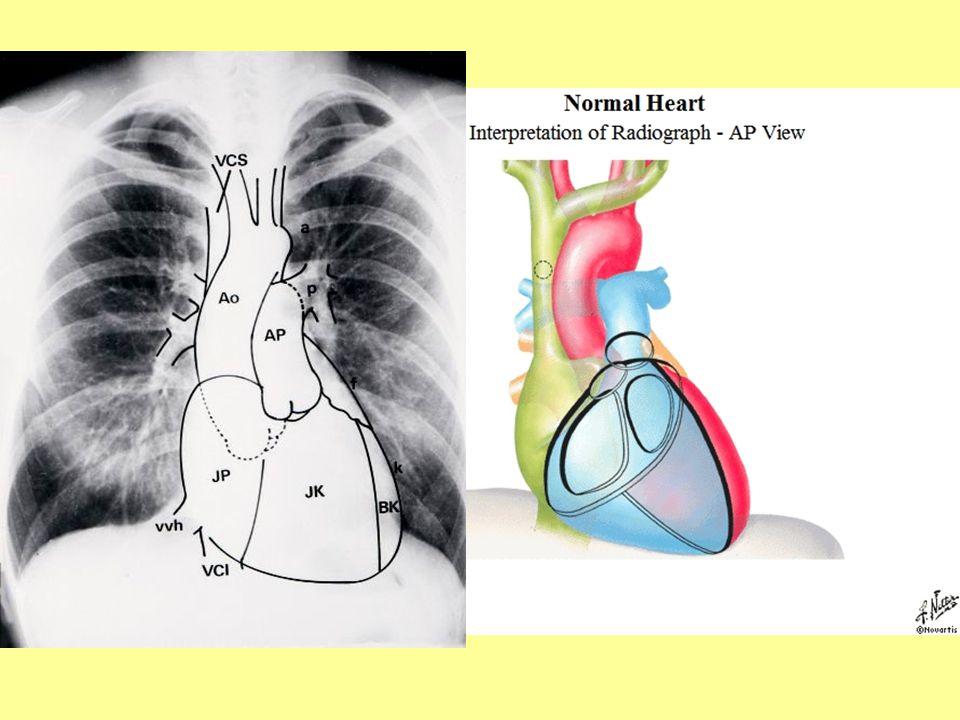 Aortastenosis röntgenjelei  aortás konfiguráció –bal kamra hypertrophia –lekerekített  hátrafelé túlér a nyelőcső vonalán –szívöböl (a.