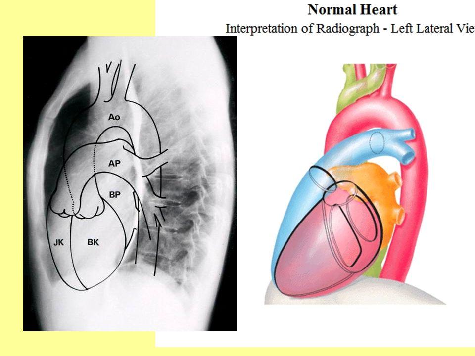 CT  Multislice CT: gyors adatgyűjtés  EKG kapuzás  natív: –kis coronaria meszesedések  kontrasztos (időzített): –szívizomzat, szívüregek, –bennük lévő képletek, fali thrombusok, daganatok  térbeli rekonstrukció –bonyolultabb szívhibák –nagyér-elváltozások  CT-coronarográfia (~angiográfia) –meszes és lágy plaque-ok elkülönítése (thrombosis kockázata) –plakk analízis