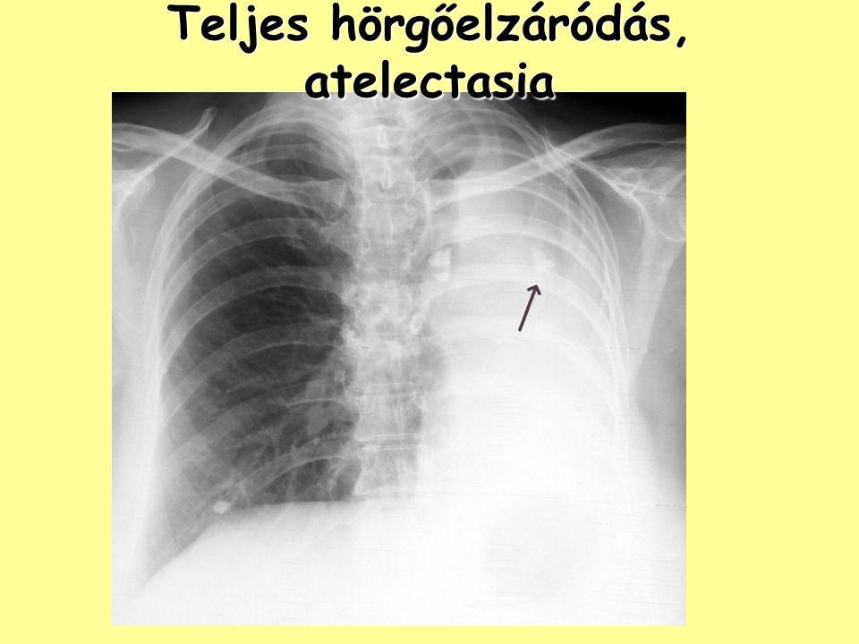 Teljes hörgőelzáródás, atelectasia