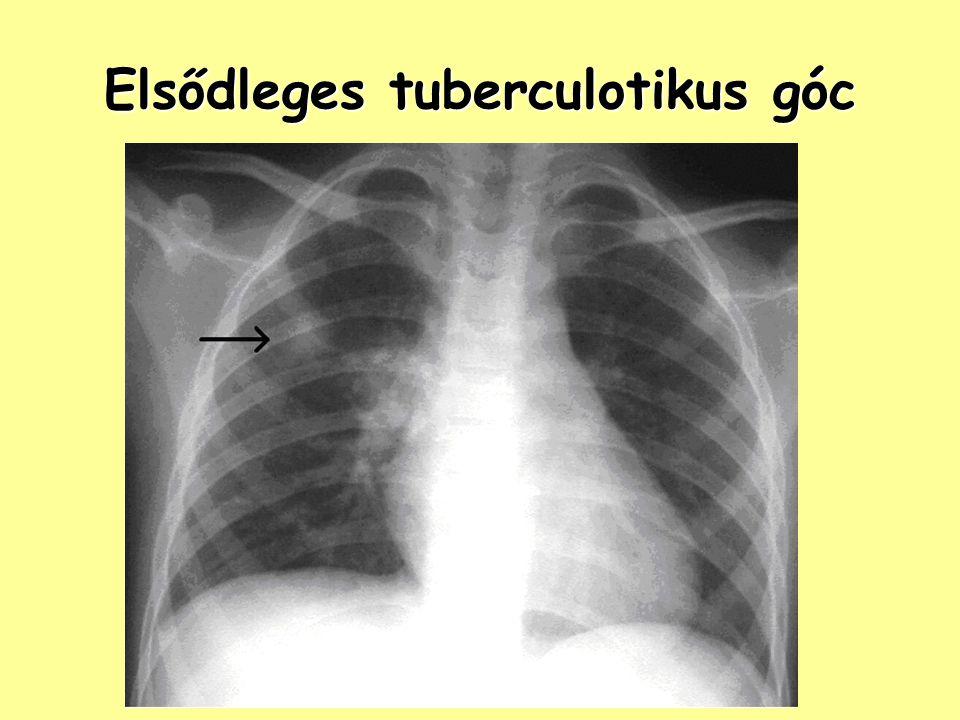 Elsődleges tuberculotikus góc