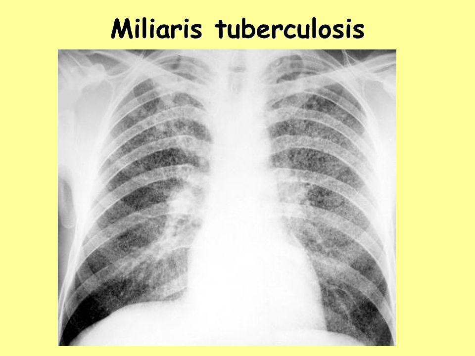 Miliaris tuberculosis