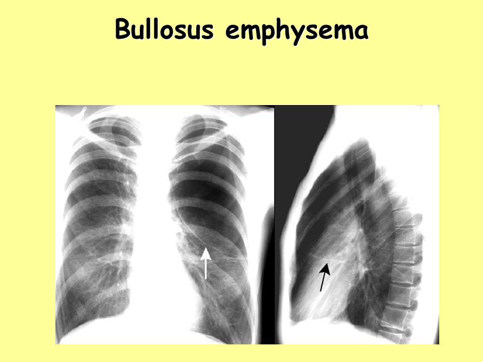 Bullosus emphysema