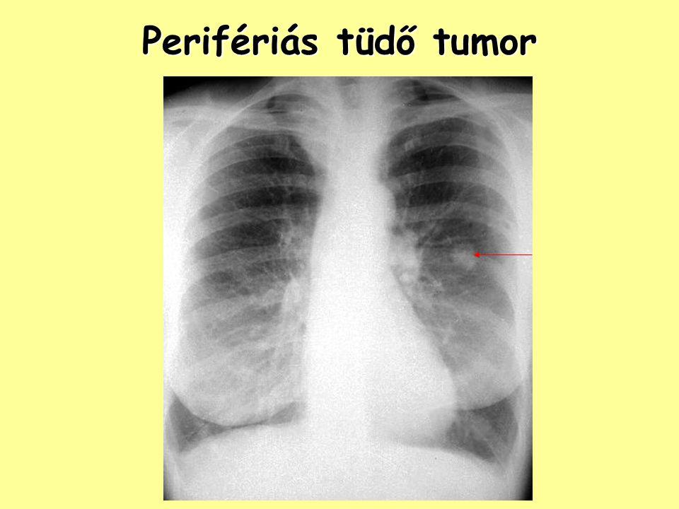 Perifériás tüdő tumor