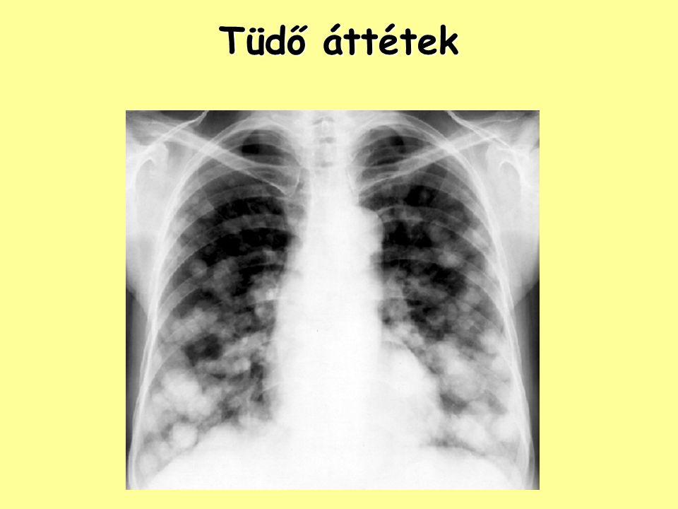 Tüdő áttétek