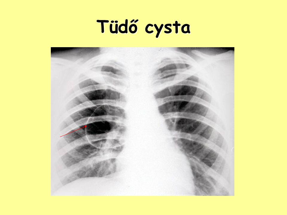 Pleura – Pneumothorax ptx, légmell: a mellhártya lemezei közé levegő kerül típusai: –spontán: pl.