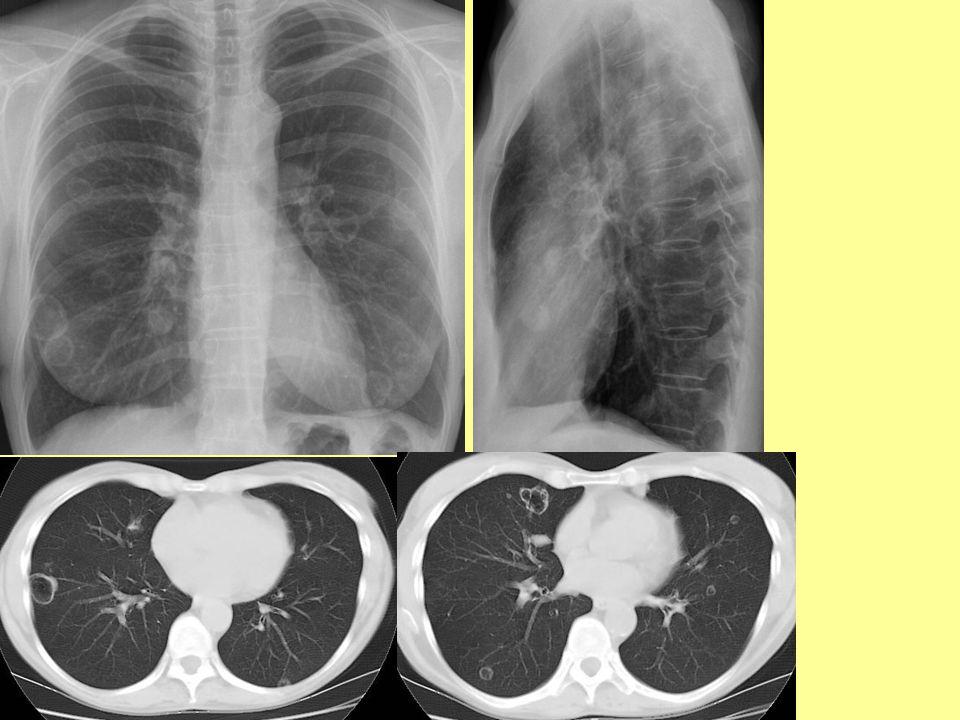 Emphysema dg: –rtg: kilégzésben is tág hordó-mellkas tüdő transzparenciája fokozott ritkább perifériás érrajzolat mélyen álló lelapult rekesz vízszintesen álló bordák, széles intercostalis rések emphysemás bullák cor pulmonale –HRCT terápia: –emphysema kialakulásának lassítása: súlyosbító tényezők elhagyása (dohányzás) / megelőzése (influenza elleni védőoltás) –tüneti kezelés: légzőtorna, O 2 –műtét: tüdőtérfogat csökkentés, tüdőtranszplantáció