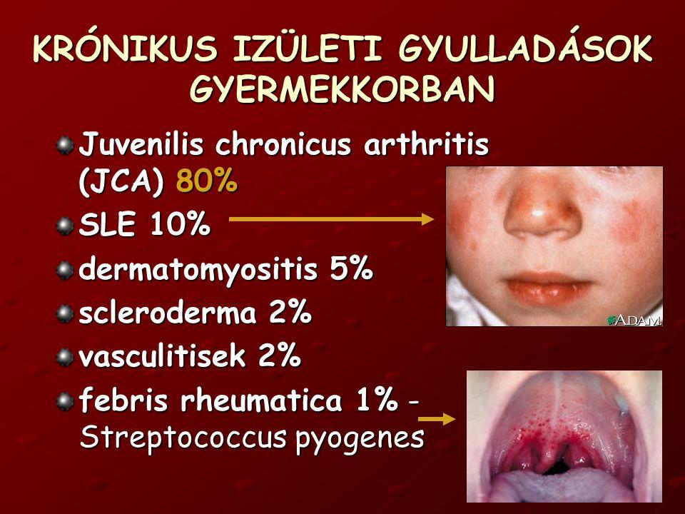 Juvenilis chronicus arthritis (JCA) 80% SLE 10% dermatomyositis 5% scleroderma 2% vasculitisek 2% febris rheumatica 1% - Streptococcus pyogenes KRÓNIKUS IZÜLETI GYULLADÁSOK GYERMEKKORBAN