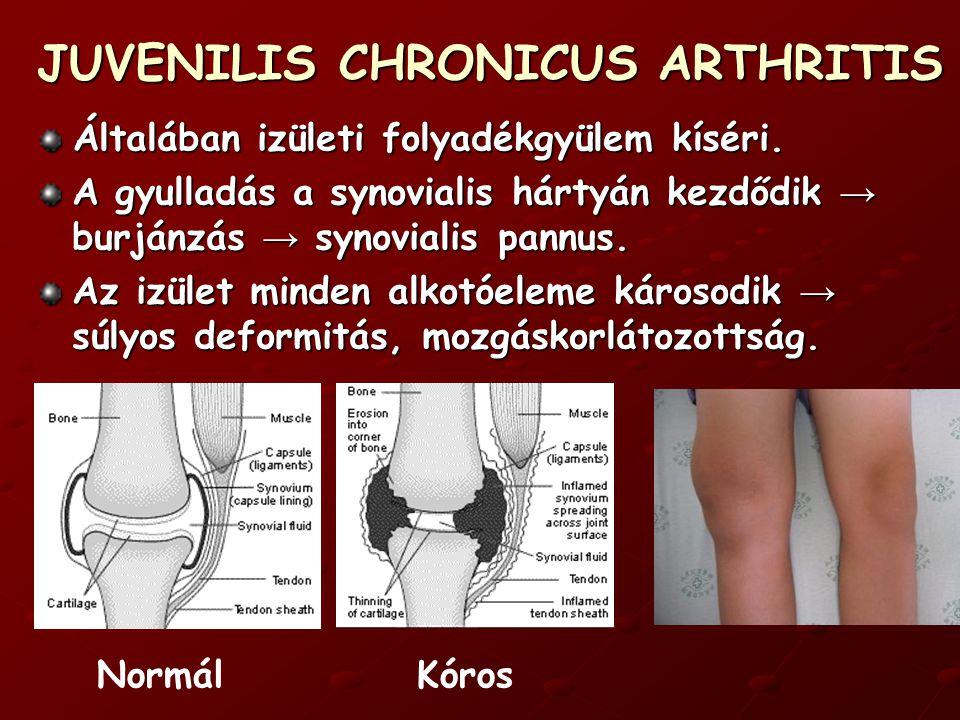 JUVENILIS CHRONICUS ARTHRITIS s ystemás forma ≈ 20% 3-5 éves korban kezdődik magas, septicus láz heteken át maculopapulosus kiütések – rheumatoid rash (múló, visszatérő) generalisalt lymphadenopathia (acut hasat utánozhat)