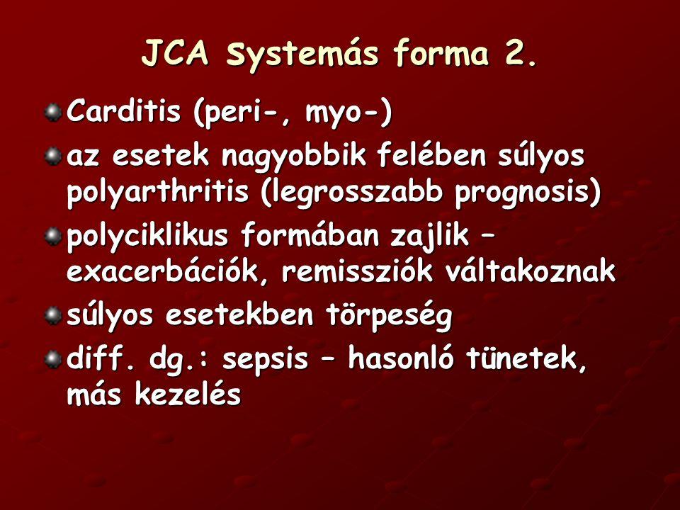 JCA s ystemás forma 2.