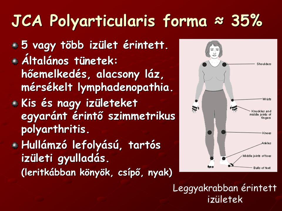 JCA Polyarticularis forma ≈ 35% 5 vagy több izület érintett.