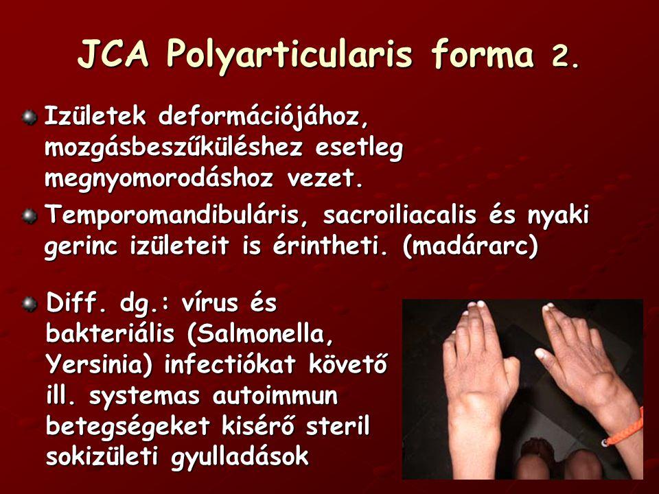JCA Oligoarticularis forma ≈ 35% Max.4 érintett izület.