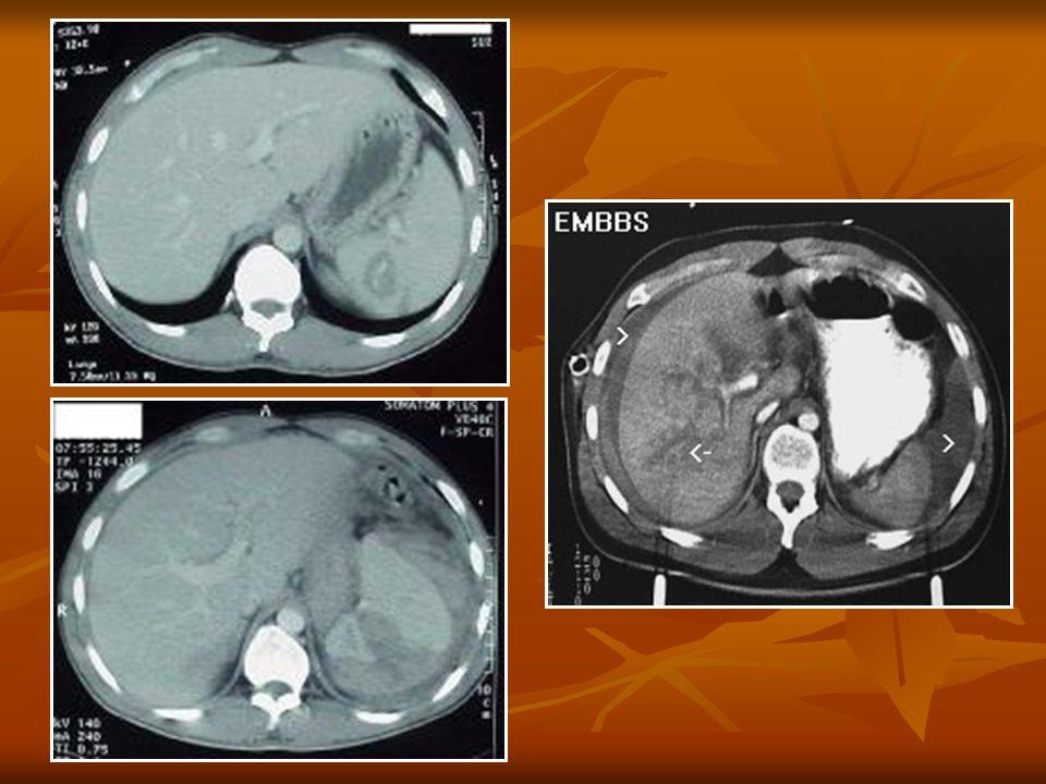A medence spirál CT vizsgálati protokollja szeletvastagság / kép.rek.: 5 mm szeletvastagság / kép.rek.: 5 mm pitch : 1 pitch : 1 i.v.