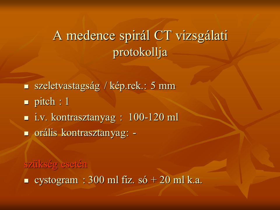 A medence spirál CT vizsgálati protokollja szeletvastagság / kép.rek.: 5 mm szeletvastagság / kép.rek.: 5 mm pitch : 1 pitch : 1 i.v. kontrasztanyag :