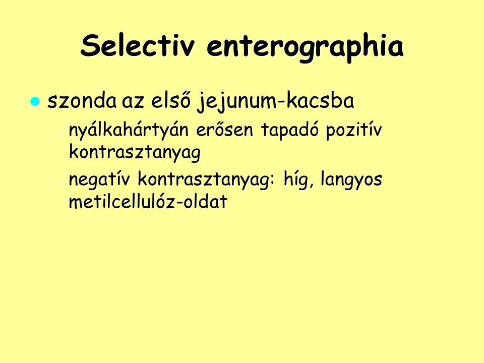 Selectiv enterographia szonda az első jejunum-kacsba szonda az első jejunum-kacsba nyálkahártyán erősen tapadó pozitív kontrasztanyag nyálkahártyán er