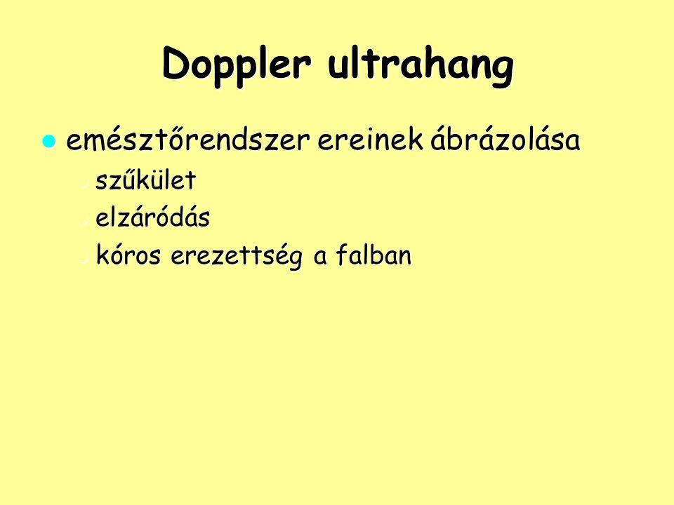 Doppler ultrahang emésztőrendszer ereinek ábrázolása emésztőrendszer ereinek ábrázolása szűkület szűkület elzáródás elzáródás kóros erezettség a falba