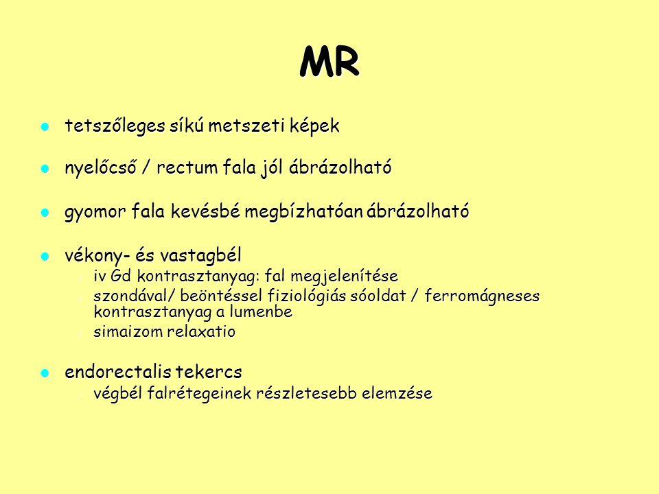 MR tetszőleges síkú metszeti képek tetszőleges síkú metszeti képek nyelőcső / rectum fala jól ábrázolható nyelőcső / rectum fala jól ábrázolható gyomo