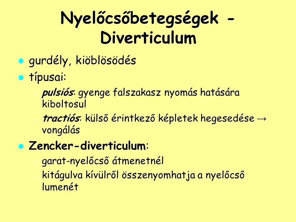 Nyelőcsőbetegségek - Diverticulum gurdély, kiöblösödés gurdély, kiöblösödés típusai: típusai: pulsiós: gyenge falszakasz nyomás hatására kiboltosul pu