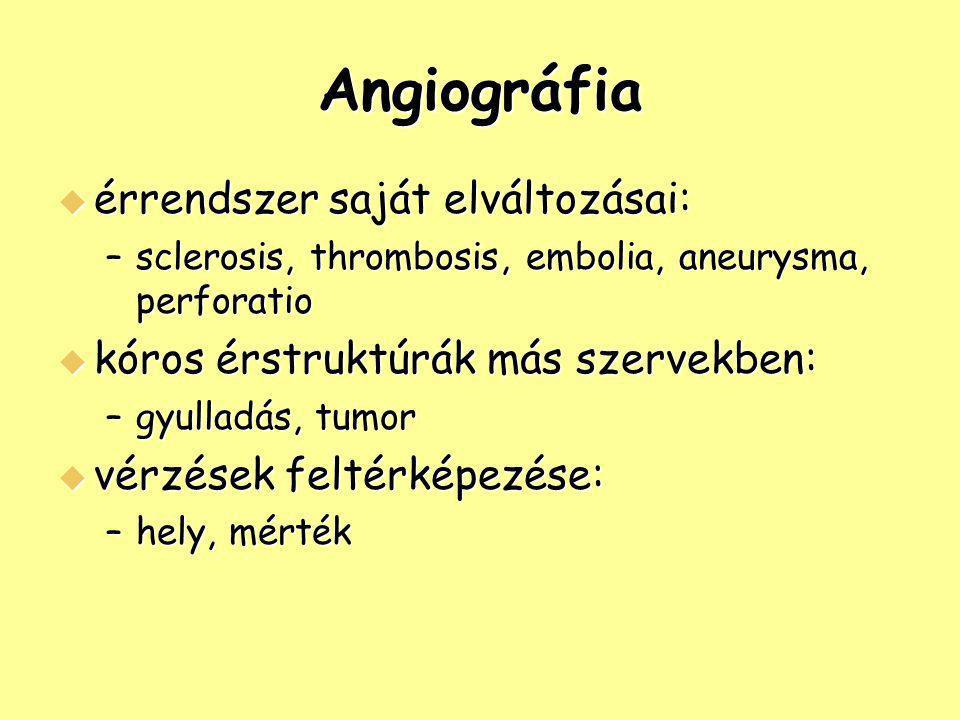 Angiográfia  érrendszer saját elváltozásai: –sclerosis, thrombosis, embolia, aneurysma, perforatio  kóros érstruktúrák más szervekben: –gyulladás, t