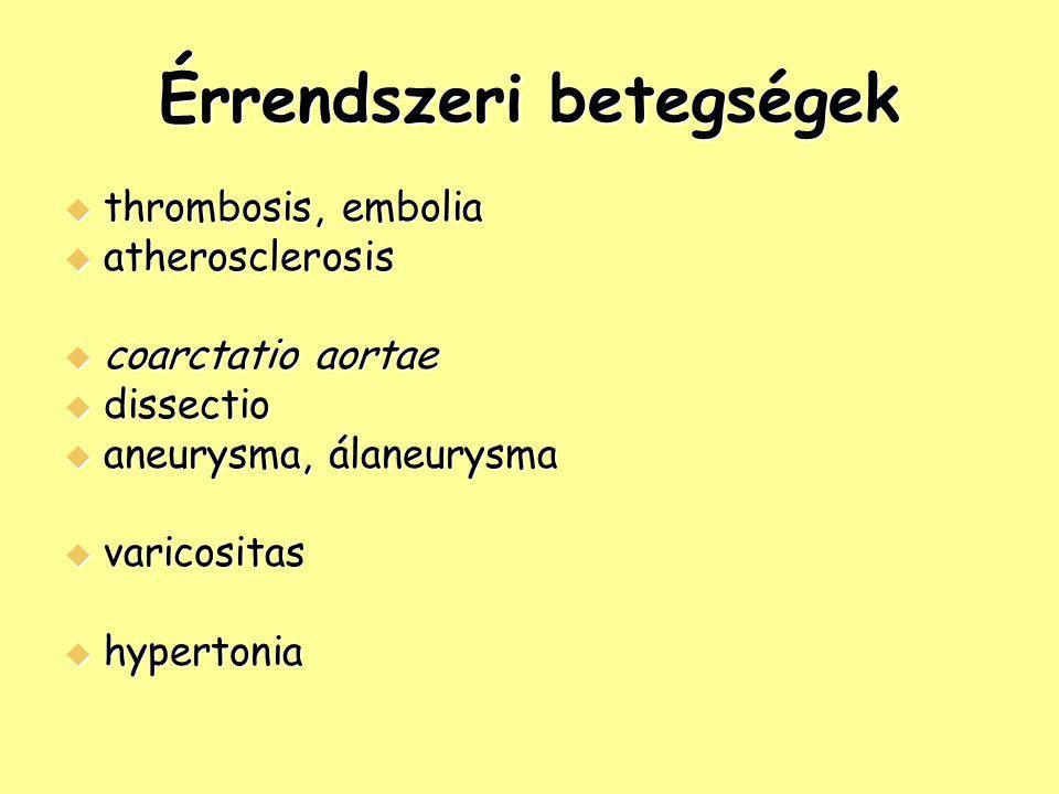 Érrendszeri betegségek  thrombosis, embolia  atherosclerosis  coarctatio aortae  dissectio  aneurysma, álaneurysma  varicositas  hypertonia