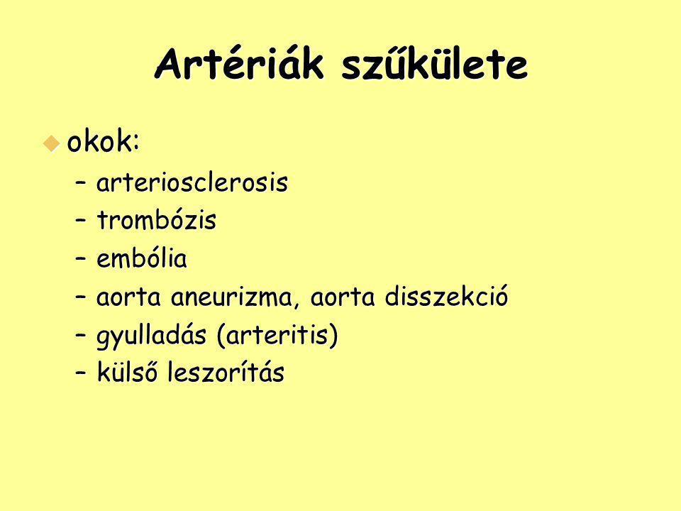 Artériák szűkülete  okok: –arteriosclerosis –trombózis –embólia –aorta aneurizma, aorta disszekció –gyulladás (arteritis) –külső leszorítás