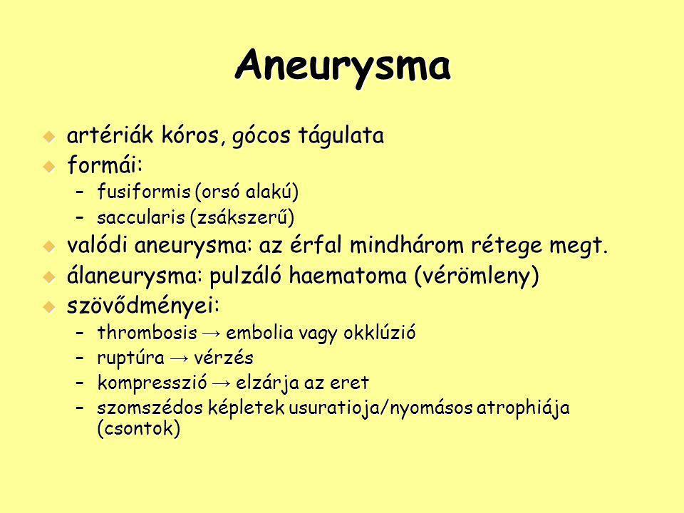 Aneurysma  artériák kóros, gócos tágulata  formái: –fusiformis (orsó alakú) –saccularis (zsákszerű)  valódi aneurysma: az érfal mindhárom rétege me