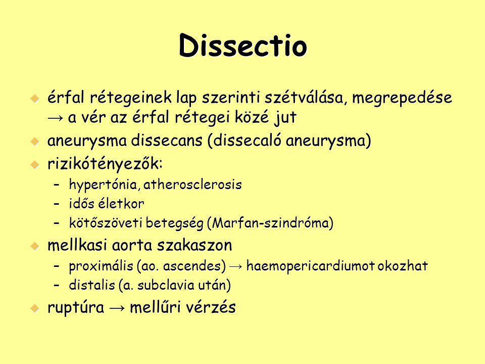 Dissectio  érfal rétegeinek lap szerinti szétválása, megrepedése → a vér az érfal rétegei közé jut  aneurysma dissecans (dissecaló aneurysma)  rizi
