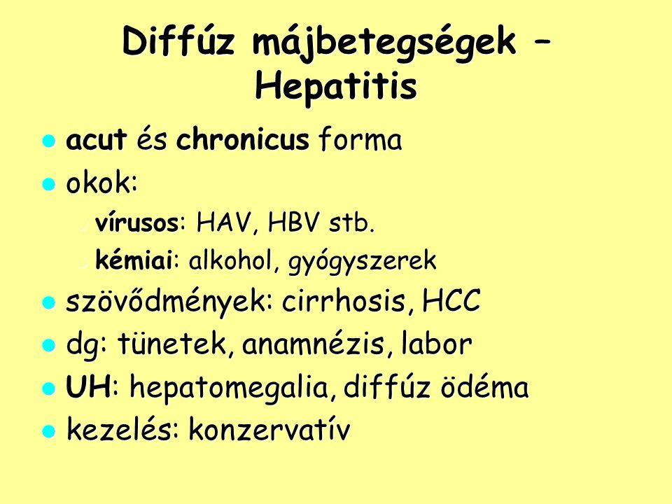 Diffúz májbetegségek – Hepatitis acut és chronicus forma acut és chronicus forma okok: okok: vírusos: HAV, HBV stb. vírusos: HAV, HBV stb. kémiai: alk