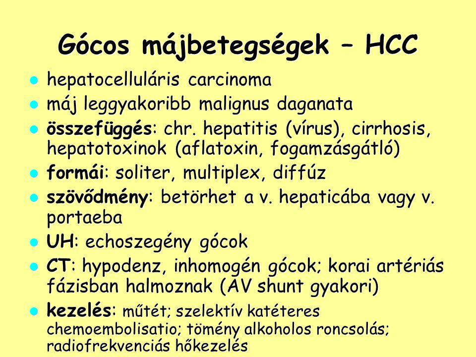 Gócos májbetegségek – HCC hepatocelluláris carcinoma hepatocelluláris carcinoma máj leggyakoribb malignus daganata máj leggyakoribb malignus daganata