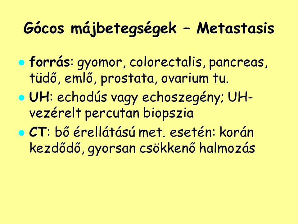 Gócos májbetegségek – Metastasis forrás: gyomor, colorectalis, pancreas, tüdő, emlő, prostata, ovarium tu. forrás: gyomor, colorectalis, pancreas, tüd