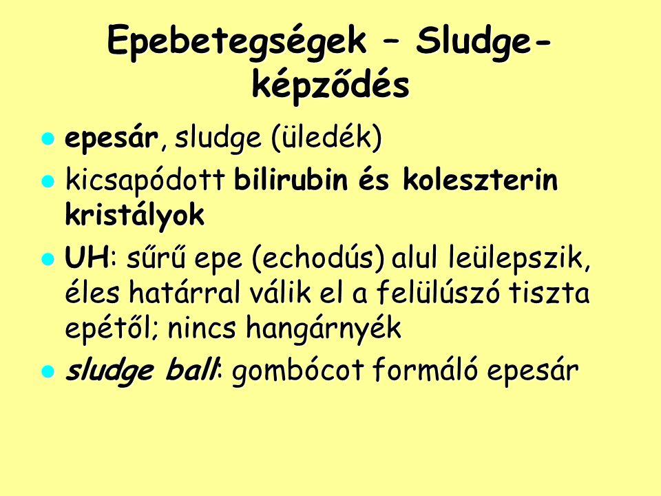 Epebetegségek – Sludge- képződés epesár, sludge (üledék) epesár, sludge (üledék) kicsapódott bilirubin és koleszterin kristályok kicsapódott bilirubin