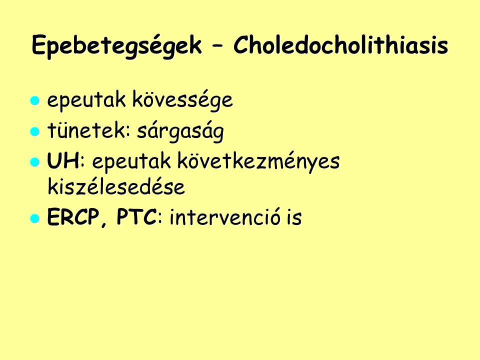 Epebetegségek – Choledocholithiasis epeutak kövessége epeutak kövessége tünetek: sárgaság tünetek: sárgaság UH: epeutak következményes kiszélesedése U