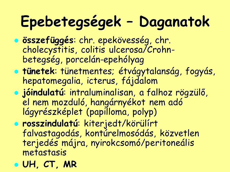 Epebetegségek – Daganatok összefüggés: chr. epekövesség, chr. cholecystitis, colitis ulcerosa/Crohn- betegség, porcelán-epehólyag összefüggés: chr. ep