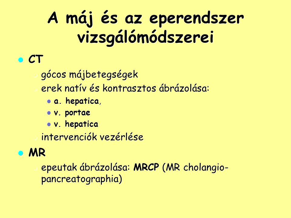 """Diffúz májbetegségek – Steatosis a máj zsíros átalakulása a máj zsíros átalakulása okok: alkohol, DM, hepatitis, obesitas, túltápláltság okok: alkohol, DM, hepatitis, obesitas, túltápláltság lehet diffúz vagy fokális (dd: a megkímélt területek daganat gyanúját keltik – CT, MR, szövettan) lehet diffúz vagy fokális (dd: a megkímélt területek daganat gyanúját keltik – CT, MR, szövettan) UH: echodús, fényes """"világos máj ; gócos egyenetlenség, szabálytalan reflektivitás UH: echodús, fényes """"világos máj ; gócos egyenetlenség, szabálytalan reflektivitás CT: zsíros részek hypodenzek, a normális területek hyperdenzek CT: zsíros részek hypodenzek, a normális területek hyperdenzek MR: zsír kimutatása MR: zsír kimutatása"""