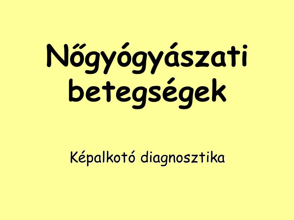 Ovarium – Cysták és daganatok cystás betegségek follicularis/lutealis cystafollicularis/lutealis cysta polycystás ovariumpolycystás ovarium cystás daganatok (jó/rosszindulatúak)cystás daganatok (jó/rosszindulatúak) ált.